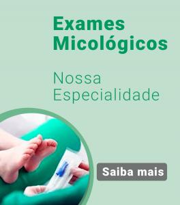 Exames-Micologicos-Laboratorio-Santa-Terezinha7